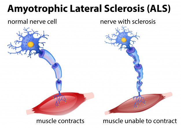 amyotrophic-lateral-sclerosis-concept_1308-15653